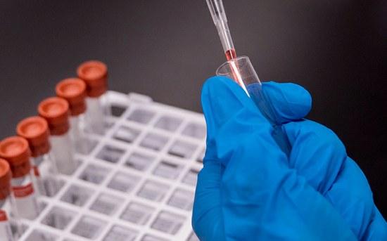 P.PORTO integra rede nacional de diagnóstico da COVID-19